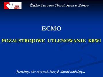 ECMO - Śląskie Centrum Chorób Serca w Zabrzu