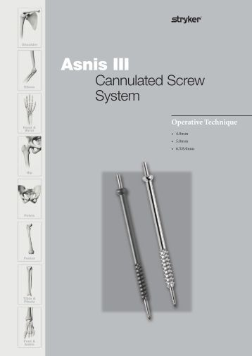 Global Osteosynthesis Internal Fixation Devices Sales Market Report 2017