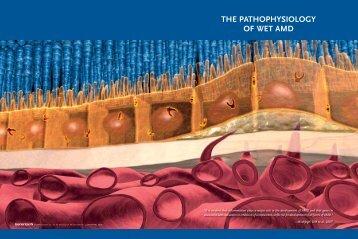 THE PATHOPHYSIOLOGY OF WET AMD - Lucentis