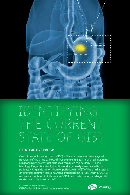 IDENTIFYING THE CurrENT STaTE oF GIST - PfizerPro
