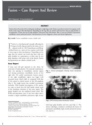 Fusion – Case Report And Review - IJMD