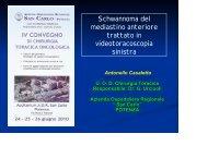 Schwannoma mediastinico - Ospedale San Carlo