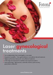 Laser gynecological treatments - Fotona