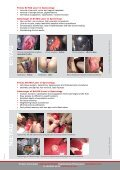 Laser gynecological treatments - Fotona - Page 2