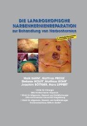 Die laparoskopische Narbenhernienreparation zur Behandlung von ...