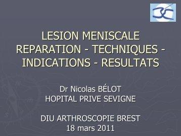 LESION MENISCALE - Société française d'arthroscopie