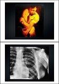 The History of Coronary Angioplasty - Page 2