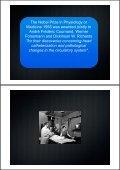 The History of Coronary Angioplasty - Page 4