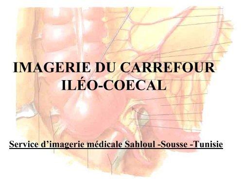 Imagerie Du Carrefour Ilão Coecal