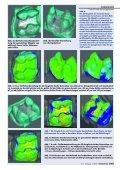 Cerec 3D unter die Lupe genommen - praxis-hc.de - Seite 6