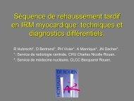 Séquence de rehaussement tardif en IRM myocardique: techniques ...