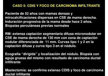 CASO 5: CDIS Y FOCO DE CARCINOMA INFILTRANTE Paciente ...