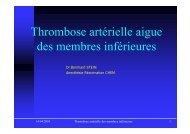 Thrombose artérielle aigue des membres inférieures