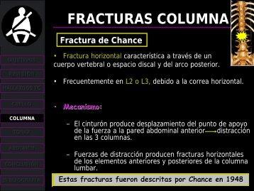 fracturas columna