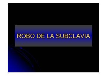 ROBO DE LA SUBCLAVIA