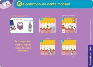 Contention de dents mobiles