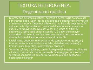 TEXTURA HETEROGENEA. Degeneracin quística