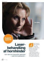 Laser- behandling af hornhinder - Øjenforeningen Værn om Synet