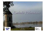 Embolie Pulmonaire - SMUR BMPM