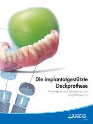 IMPLANTATGESTÜTZTE DECKPROTHESE 2012/02.indd - Astra Tech