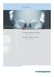 Cochlea-Implantat-Fixierung Cochlear Implant Fixation - Osteoplac