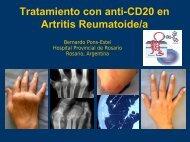 Tratamiento con anti-CD20 en Artritis Reumatoide/a
