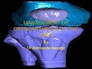 management of osteoarthritis of the knee - MOTEC LIFE-UK