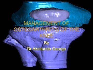 management of osteoarthritis of the knee - MOTEC LIFE-UK