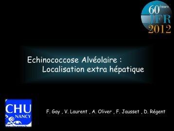 chinococcose-alvéolaire-extra-hépatiqueFILEminimizer