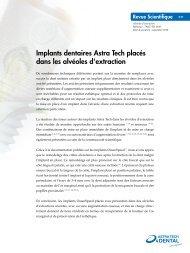 Implants dentaires Astra Tech placés dans les alvéoles d'extraction