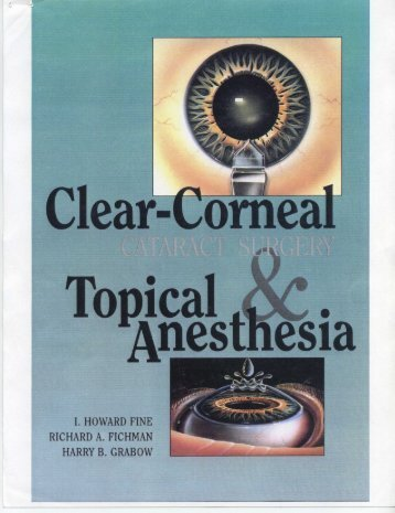 Clear Corneal Cataract Surgery And Topical Anesthesia
