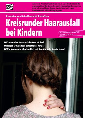 Kreisrunder Haarausfall bei Kindern