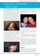 Kreisrunder Haarausfall bei Kindern - Seite 3