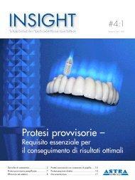 Protesi provvisorie semplificate - Astra Tech