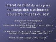 en charge des carcinomes lobulaires invasifs du sein