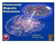 Transcranial Magnetic Stimulation - Research Imaging Institute
