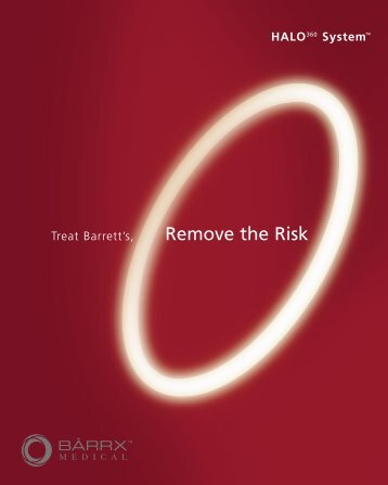 Remove the Risk - Barrett's Oesophagus