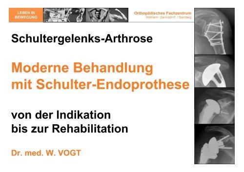 das PDF des Vortrags downloaden - Orthopädisches Fachzentrum ...