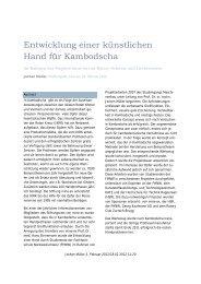 Entwicklung einer künstlichen Hand für Kambodscha - Rotary Schweiz
