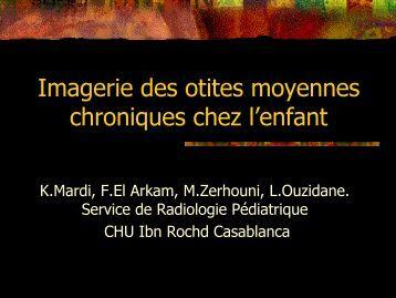 Imagerie des otites moyennes chroniques chez l'enfant