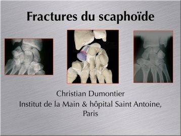 Fractures scaphoïde C. Dumontier - ClubOrtho.fr