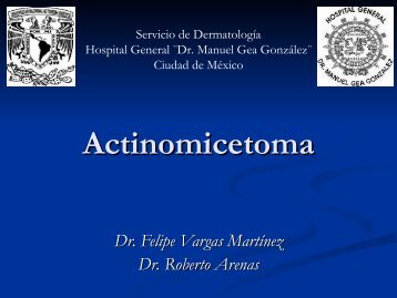 Actinomicetoma - PIEL-L Latinoamericana
