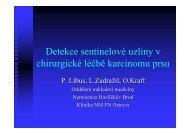 Detekce sentinelové uzliny v chirurgické léčbě karcinomu prsu+ ...