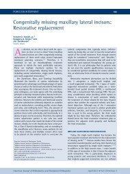 Congenitally missing maxillary lateral incisors: Restorative ...