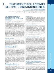 trattamento delle stenosi del tratto digestivo inferiore - Sied