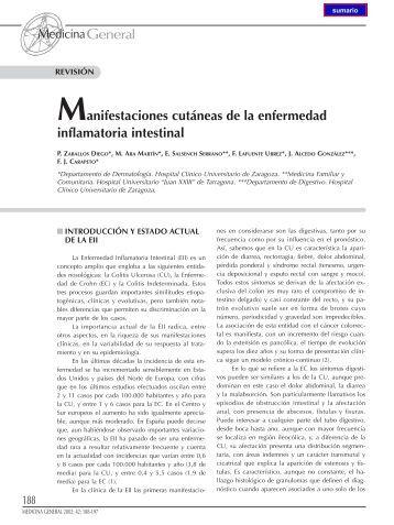 Manifestaciones cutáneas de la enfermedad inflamatoria intestinal