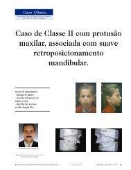 Caso de Classe II com protusão maxilar, associada ... - Dental Press