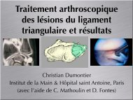 Ligament triangulaire traitement arthroscopie C ... - ClubOrtho.fr