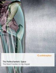 The Peritrochanteric Space The Next Frontier in ... - Smith & Nephew