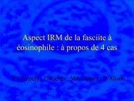 Aspect IRM de la fasciite à éosinophile : à propos de 4 cas